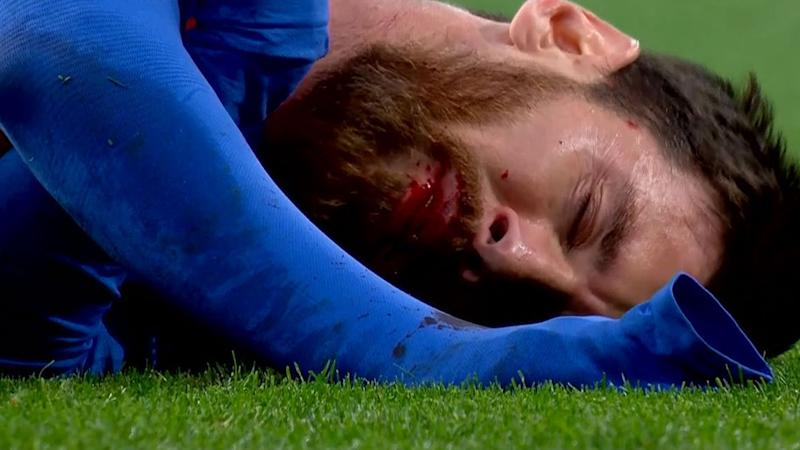 Captura Messi sangre Real Madrid Barcelona 230417
