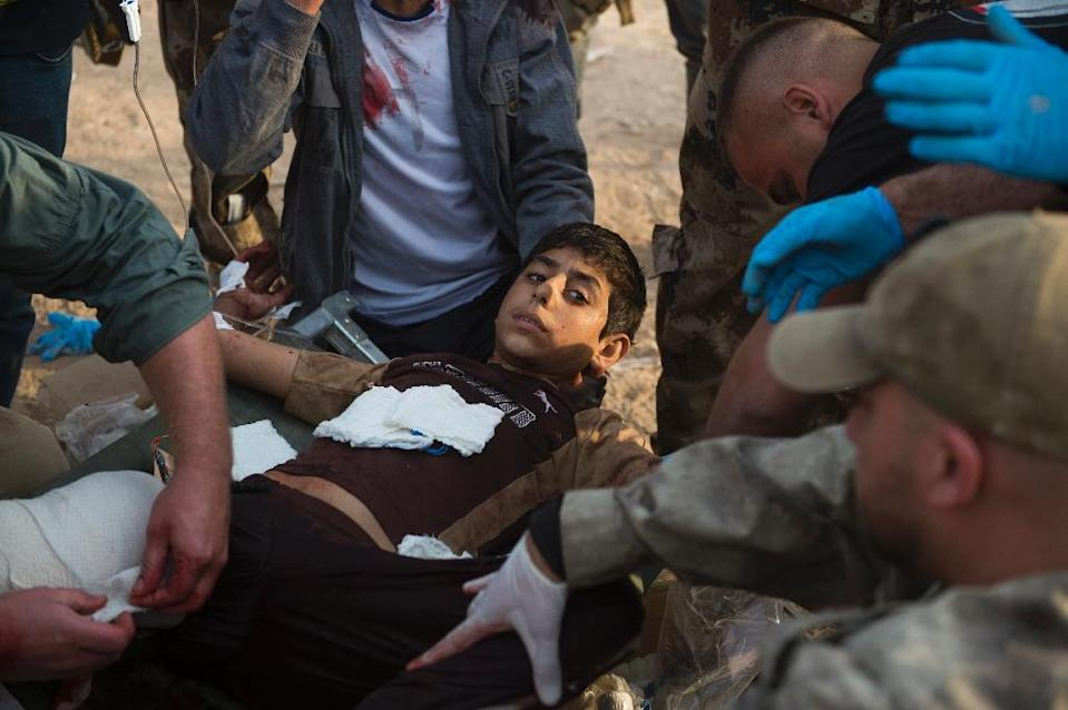 Foreign volunteers treat 12-year-old Mohammed at an outdoor field clinic in the Al-Samah neighbourhood in Mosul on November 13, 2016 after a double-barreled mortar attack seriously injured Mohammed and killed his 15 year old neighbour Shafiq (AFP Photo/Odd Andersen)