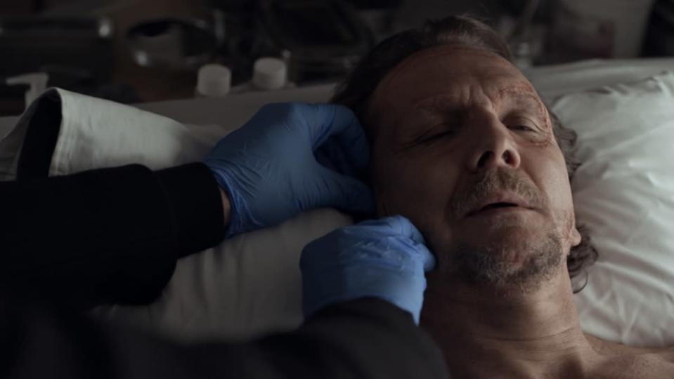 An unseen man with blue latex gloves uses a scalpel to cut another man's face