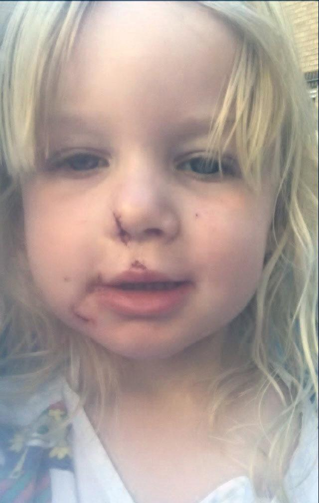 Alice had part of her nose bitten off in the incident (Picture: SWNS)