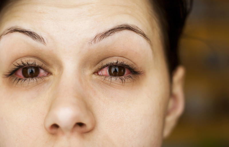 A new research letter suggests patients with COVID-19 are getting pink eye that lasts for weeks. Experts unpack what that means.