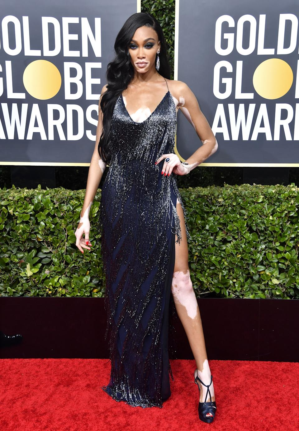 "<h1 class=""title"">Winnie Harlow in LaQuan Smith, Christian Louboutin shoes, and Lorraine Schwartz jewelry</h1><cite class=""credit"">Photo: Getty Images</cite>"