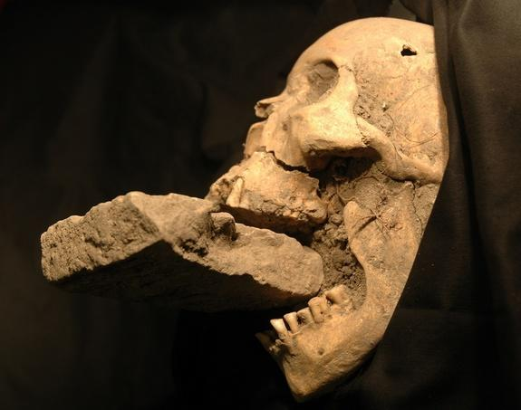 """The skull of the """"vampire of Venice,"""" found in a mass grave with a brick stuck in its jaw."""