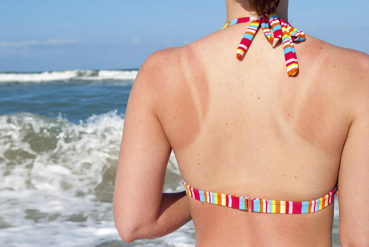 Ways to treat your sunburn at home