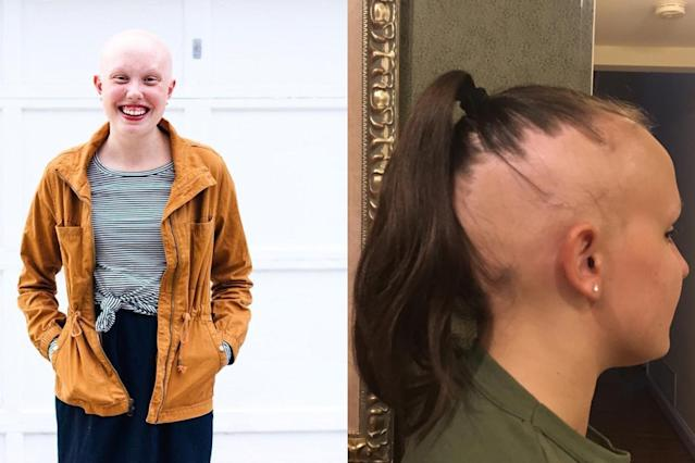 Women are bravely sharing their alopecia stories on social media. (Photo: Instagram/accordingtolaurajean/stephdog1)