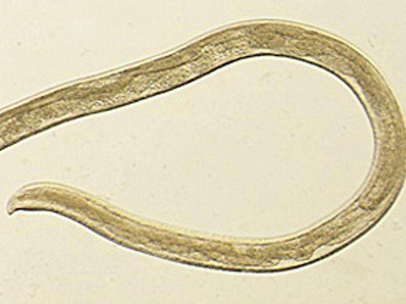 This photo provided by the Centers for Disease Control and Prevention shows Thelazia gulosa, a type of eye worm seen in cattle (CDC via AP)