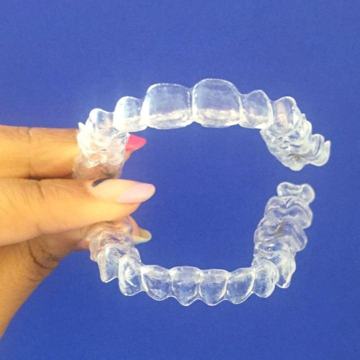 6 Easy Hacks I Learned During My Invisalign Treatment