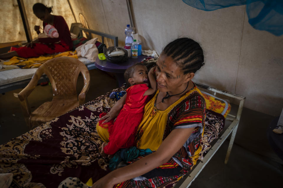 """Mother Roman Kidanemariam, 35, holds her malnourished daughter, Merkab Ataklti, 22 months old, in the treatment tent of a medical clinic in the town of Abi Adi, in the Tigray region of northern Ethiopia, on Tuesday, May 11, 2021. Birhanu Gebremedhin, health coordinator for the district of Abi Adi, says, """"This malnutrition is caused by the conflict. … They've stolen their food, their equipment, and some were killed by the troops even. So they are not able to feed their children."""" (AP Photo/Ben Curtis)"""