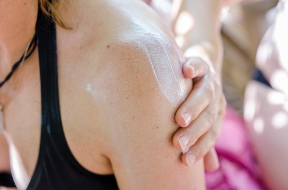 A person applies sunscreen to a woman's shoulder.