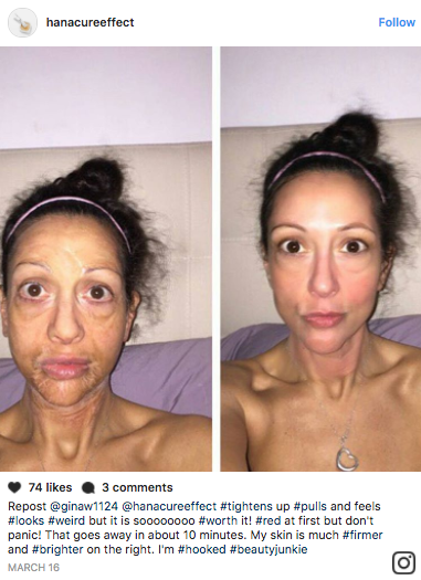 """The """"All in One Facial"""" face mask by Hanacure, a Korean beauty brand, is going viral — and here's why."""