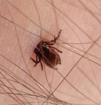 Embedded Deer Tick: Courtesy of Socal Trail Riders