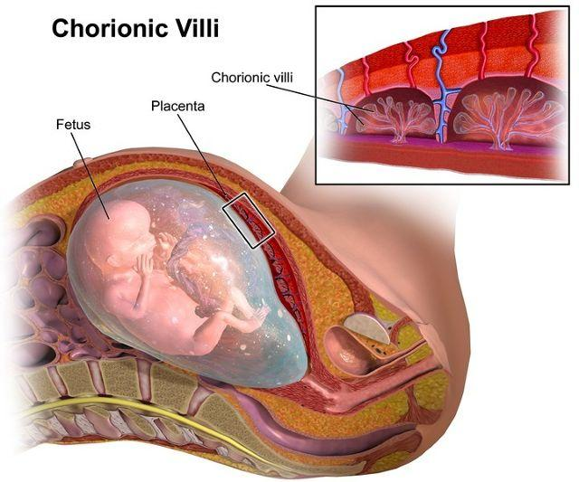 All About Chorionic Villus Sampling (CVS) Testing During Pregnancy
