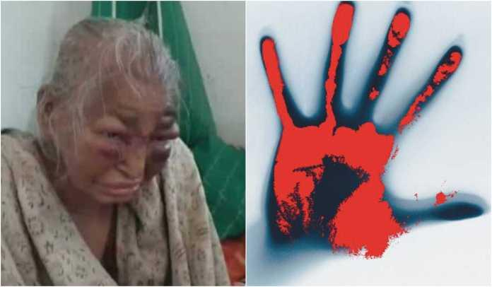 TMC workers beat up BJP workers 's 85-year-old Mother in Bengal, party denies charges