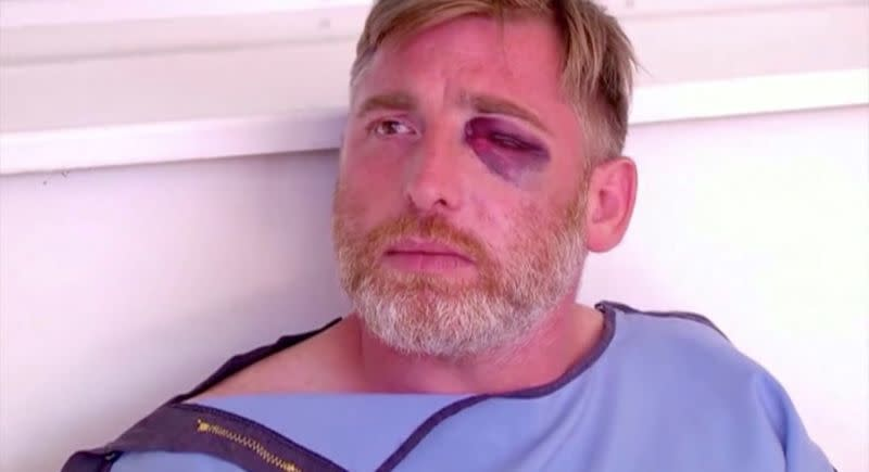TV channel Pirveli cameraman Alexander Lashkarava is seen after being beaten when violent group attacked LGBT+ activists and journalists, in Tbilisi
