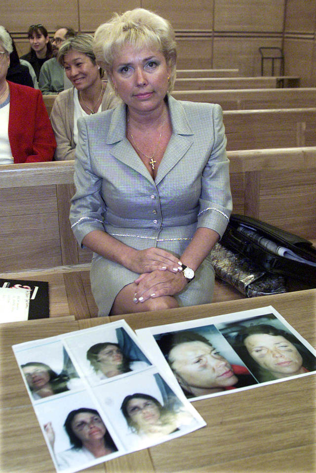 Margaret Moore, former girlfriend of Boycott, with pictures showing her bruised face which she claims was the result of a beating by the former cricketer. (Credit: Reuters)
