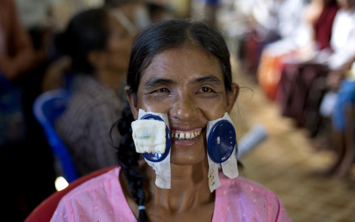 """In this Oct. 23, 2013 photo, Saw Min smiles as her eye patches are removed following a simple operation on Oct. 22 to regain sight in Bago, Myanmar. As the bandages are removed from both of Saw Man's eyes, less than 24 hours after her operation, her face lights up and she breaks into a large grin. When I started going blind, I thought my life was over,"""" she says. She had to stop collecting fire wood to sell at the market. She couldn't see the face of her 7-year-old son unless he was standing a few inches away. When neighbors passed her house, asking if she wanted to come with them to the pagoda, she had to shake her head no. I can't even begin to explain how happy I am now. I'll be able to do anything I want. But most of all, I can't wait to go home. I want to see my family."""" (AP Photo/ Gemunu Amarasinghe)"""