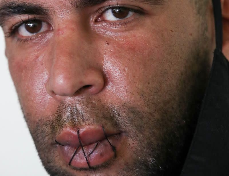 Mohamed Lamine, an asylum seeker, is seen with his lips sewed together, in Brussels