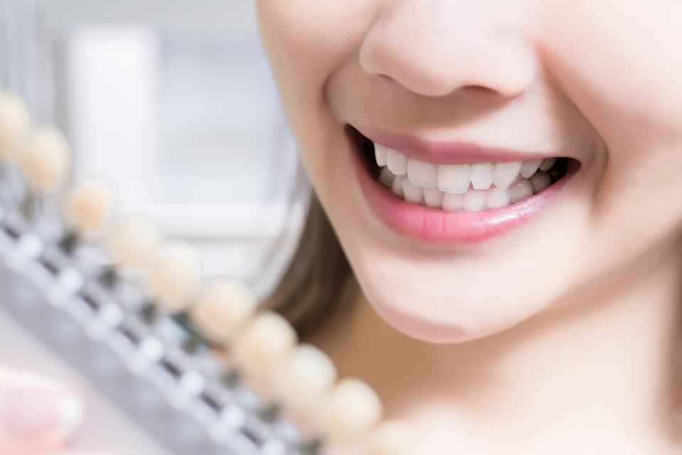 At home tooth whitening may not be as effective as hoped. (Image posed by model, Getty Images)