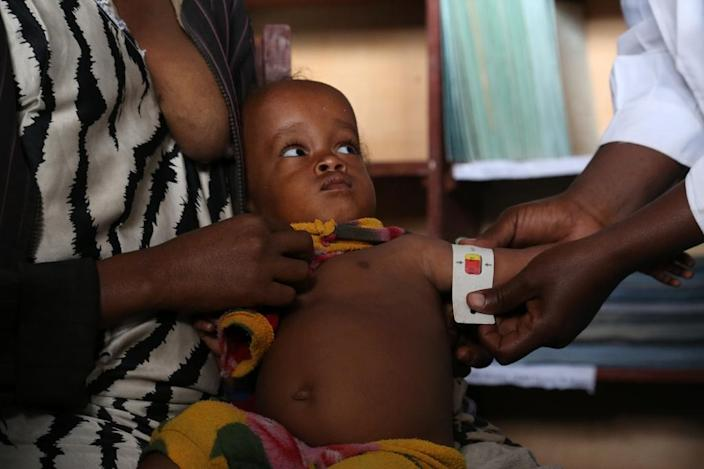 A baby undergoes an arm circumference test for severe acute malnutrition in Ogolcho, in Ethiopia's drought-affected Oromia region, on January 31, 2016 (AFP Photo/Colin Cosier)