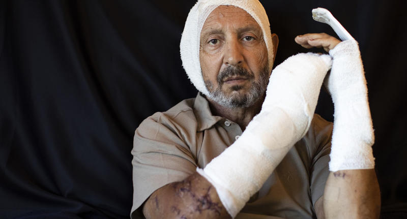 Rainier Jreissati, 63, businessman, who got injured at his home during the Aug. 4 explosion that killed more than 170 people, injured thousands and caused widespread destruction, poses for a photograph at his house in Faraya, northeast of Beirut, Lebanon, Sunday, Aug. 16, 2020. (AP Photo/Hassan Ammar)