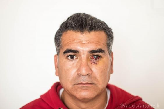 Albano Toro Cardenas says he was shot in the eye by security forces (Naomi Larsson/The Independent)