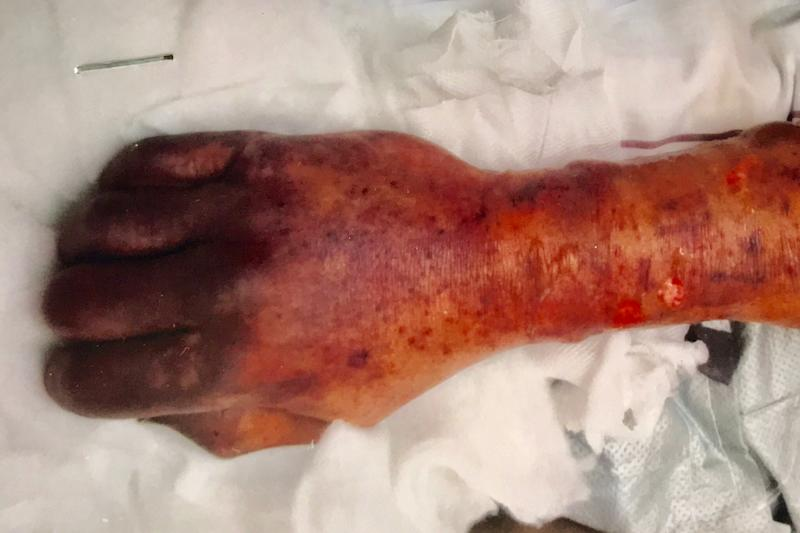 A man's hand covered in blood spots.