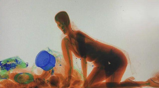 The woman appeared inside the X-ray machine. Source: PearVideo