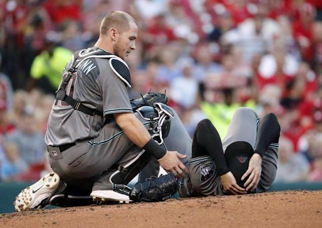 Arizona Diamondbacks starting pitcher Robbie Ray is checked on after being hit on the head by a line drive. (AP)