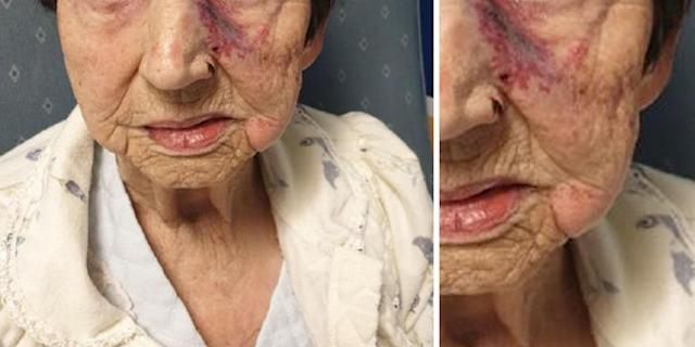 The injuries sustained by the elderly woman. (Merseyside Police)