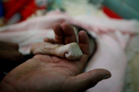 Saleh Hassan al-Faqeh holds the hand of his four-month-old daughter, Hajar, who died at the malnutrition ward of al-Sabeen hospital in Sanaa, Yemen, November 15, 2018. REUTERS/Mohamed al-Sayaghi