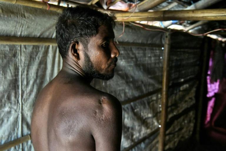 Mohammad Sikander was shot in the shoulder by the military while in his home in Myanmar in September 2017