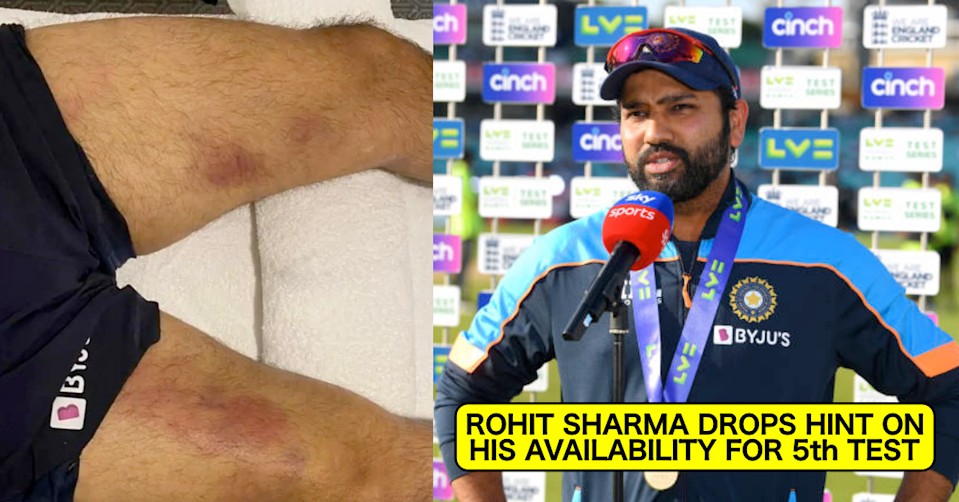England vs India, 2021: Rohit Sharma Drops A Hint On His Availability For 5th Test In Manchester
