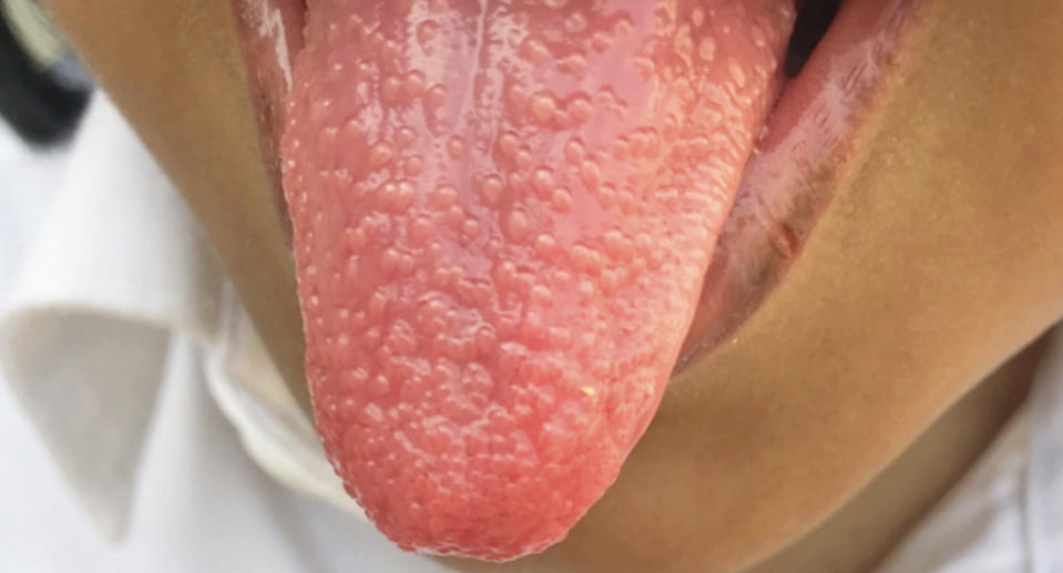 A girl, 5, with a strawberry tongue caused by strep throat.