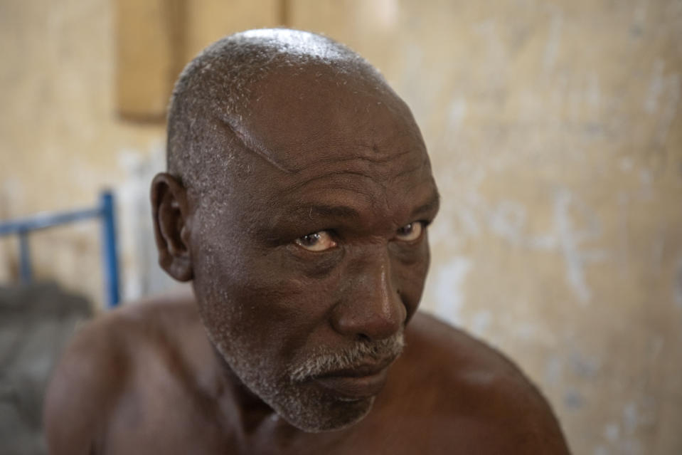 "Gebremedhin Gebru, 65-year-old farmer and Tigrayan survivor from Ruwasa, Ethiopia, shows his wounds, inside a shelter, at the Hamdeyat Transition Center near the Sudan-Ethiopia border, eastern Sudan, Tuesday, Dec. 15, 2020. Gebru, was shot while trying to run from Amhara militia members in his town of Ruwasa. He said he lay for two days until a neighbor found him. ""People will be hit if they are seen helping the wounded,"" he said. (AP Photo/Nariman El-Mofty)"
