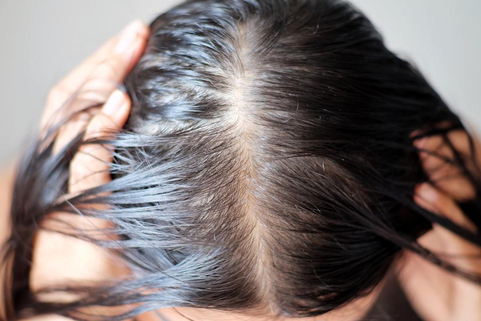 These are the best exfoliating scalp treatments to try