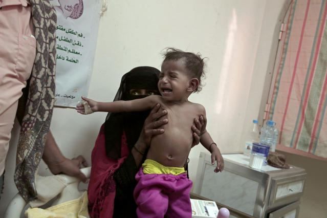 <p>Umm Molham, a Yemeni mother who is herself undernourished, struggles to hold up her malnourished 13-month-old son Molham at the Ibn Kholdoon Hospital, in Lahj, Yemen, in this Feb. 11, 2018 photo. The toddler had been vomiting, coughing and suffered from diarrhea. The family can only afford to give him formula once a day. (Photo: Nariman El-Mofty/AP) </p>