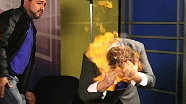 TV Magician's Head Catches Fire