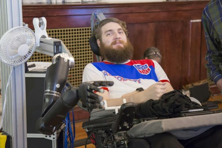 Nathan Copelandcontrols a robotic arm thanks to electrodes implanted in his brain