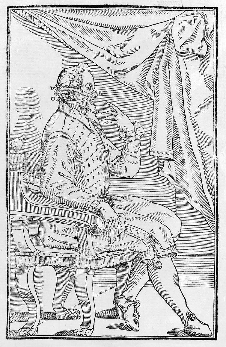 Illustration of 16th-century plastic surgery on the nose.