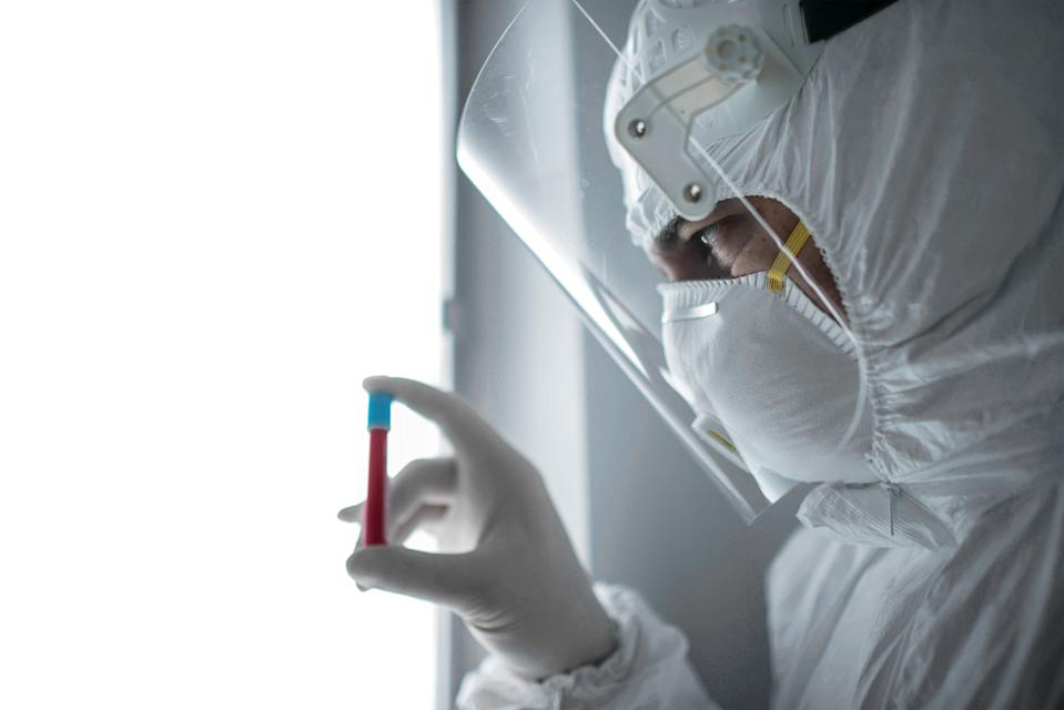 in a chemistry lab, a male researcher holds a tube with the coronavirus virus