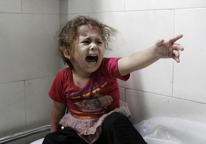 A Palestinian child screams while receiving treatment at the al-Shifa hospital in Gaza City, on July 18, 2014 (AFP Photo/Mohammed Abed)