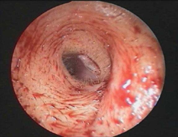 Fly Larva Crawls Inside Woman's Ear