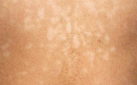 A person with pityriasis versicolor - Credit: Science Photo Library