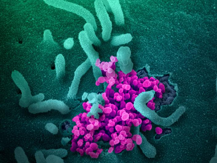 This scanning electron microscope image shows SARS-CoV-2 (the round magenta objects) emerging from the surface of cells from a coronavirus patient.