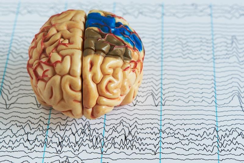 Epilepsy is one of the most common neurological conditions in the world [Photo: Getty]