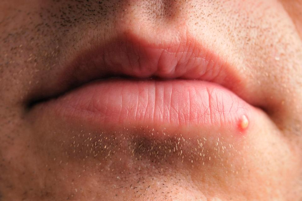 A pimple at the edge of a person's lip.