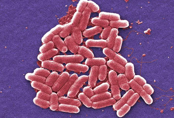 A colorized scanning electron micrograph image made available by the Centers for Disease Control and Prevention shows the O157:H7 strain of the E. coli bacteria. (Photo: Janice Carr/CDC via AP)