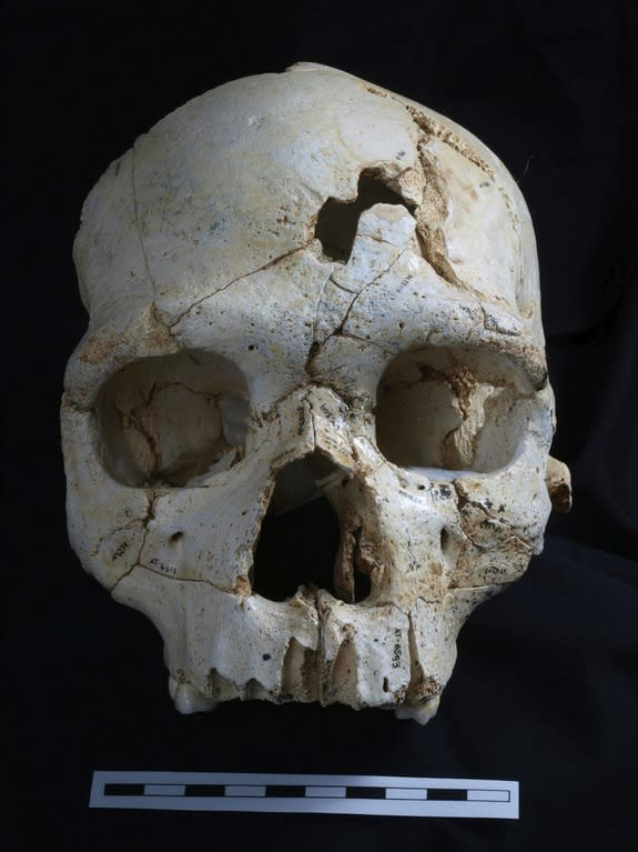 430,000-Year-Old Murder Victim Discovered
