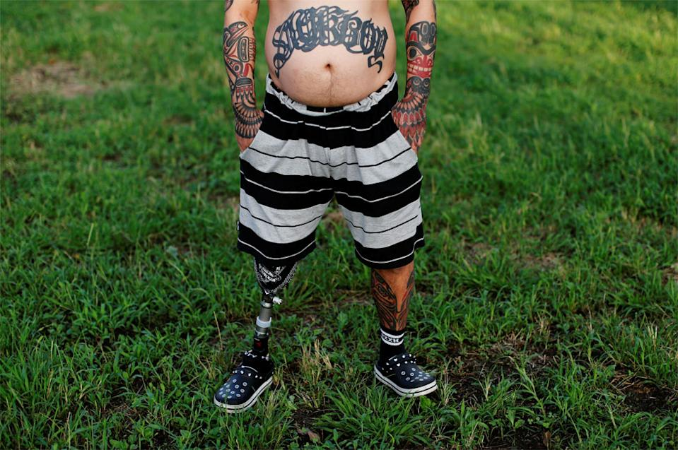 A man stands on grass wearing shorts, showing a prosthetic leg and a tattooed leg