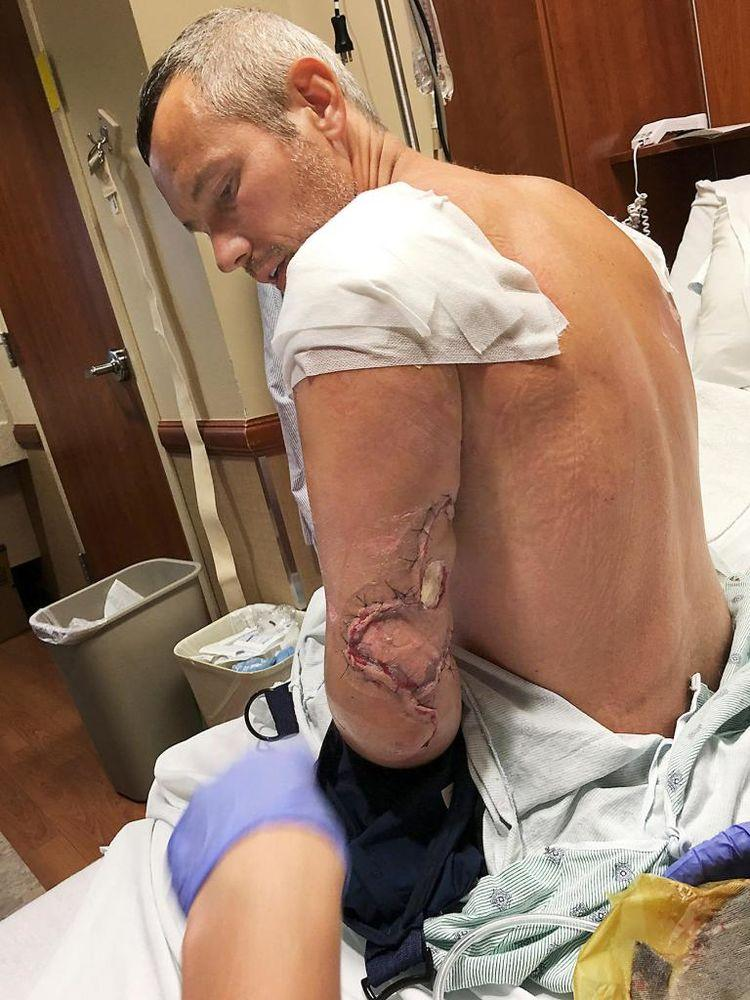 Johnson's left arm was stripped bare at the elbow.